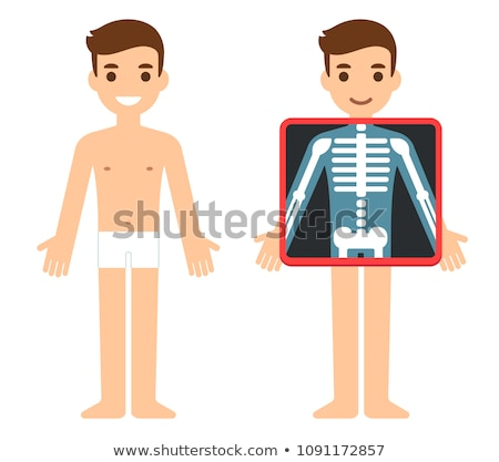 Stock photo: Chest x-ray vector illustration clip-art image