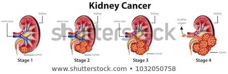 diagram showing human kidney anatomy stock photo © bluering