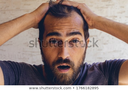 Man loosing hair, baldness Stock photo © zurijeta