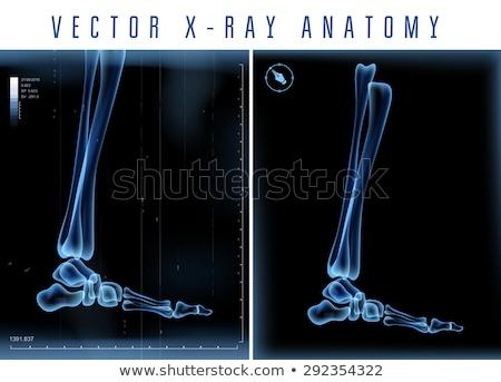 Emberi boka röntgen férfi kép film Stock fotó © smithore