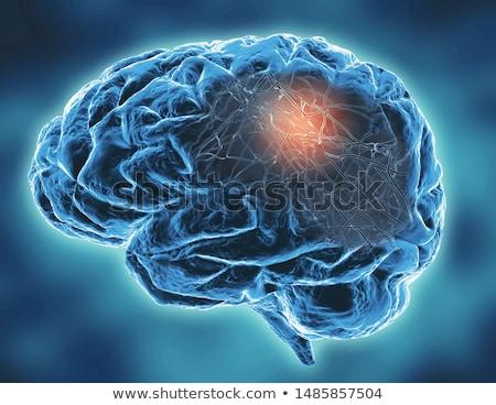 brain disorder stock photo © lightsource