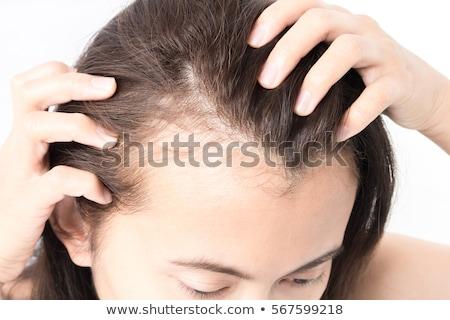 Hair Loss - Medical Concept. Stock photo © tashatuvango
