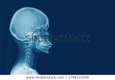 X-Ray - Cervical Spine/Neck Stock photo © iconify