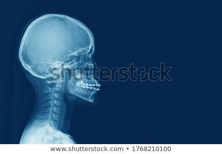 röntgen · folt · illusztráció · fej · nyak - stock fotó © iconify