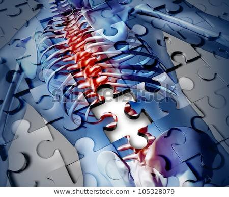Stok fotoğraf: Human Back Disease