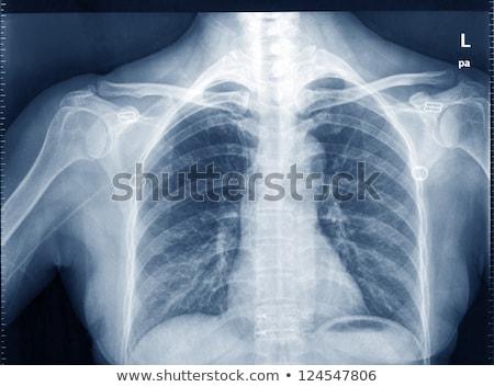 röntgen · kép · emberi · mellkas · orvosi · diagnózis - stock fotó © klinker