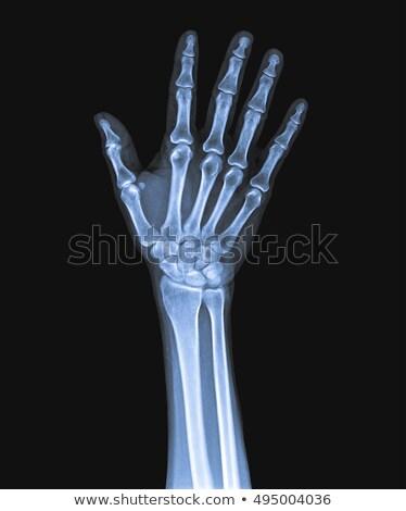 infermiera · radiologia · immagine · ufficio · medico - foto d'archivio © photography33