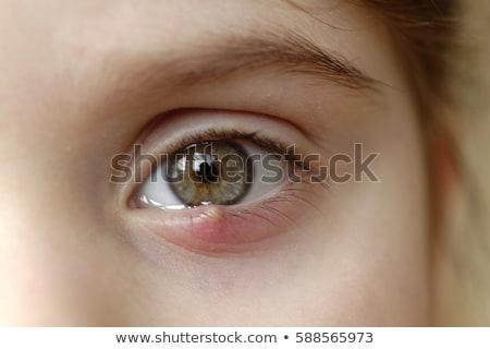 Göz karikatür enfekte çoklu etrafında cilt Stok fotoğraf © blamb