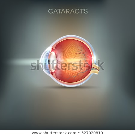 Stock photo: Cataracts abstract grey background