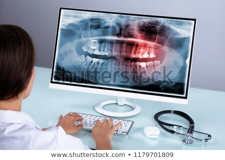 Female doctor looking over x-rays Stock photo © IS2