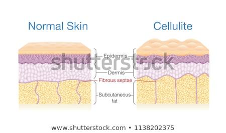 Huid cellulitis vrouw jonge ass lingerie Stockfoto © vlad_star