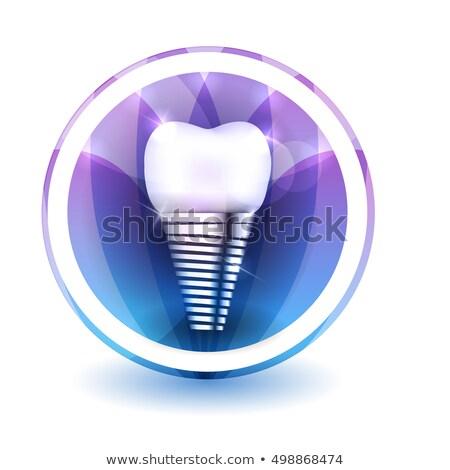 Zębów implant podpisania kolorowy kwiat Zdjęcia stock © Tefi