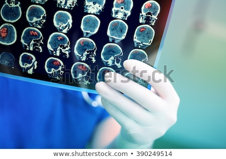 doctors hands with mri of human head stock photo © nobilior