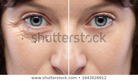 Aesthetics Beauty Portrait wrinkle zones Stock photo © phakimata