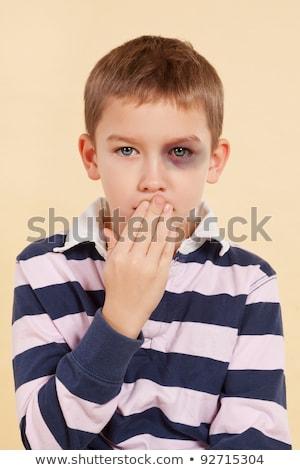 Menino preto olhos contusão ilustração olho Foto stock © bluering