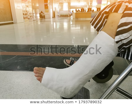 Ankle fracture Stock photo © ocskaymark