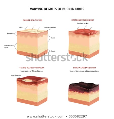 Skin burn classification Stock photo © Tefi