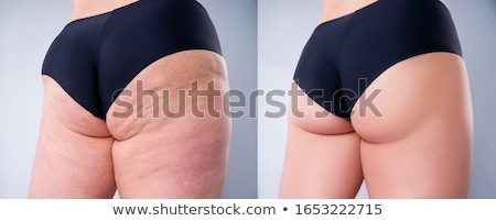 cellulite · peau · femme · blanche - photo stock © olira