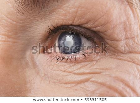 解剖 · 眼 · 表示 · 詳しい · 実例 - ストックフォト © tefi