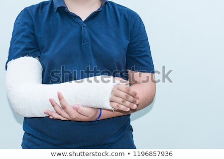 Menino braço gesso quebrado masculino roxo Foto stock © IS2