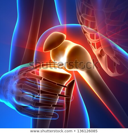 Knee pain abstract design Stock photo © Tefi