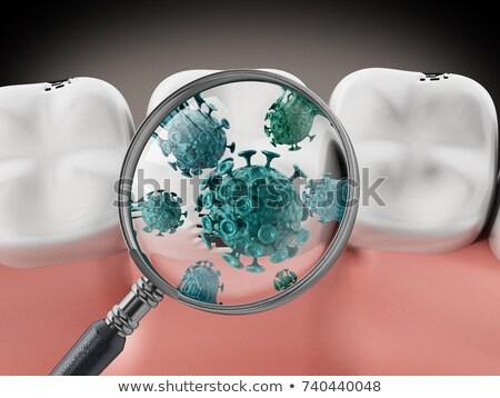 dente · goma · bactérias · médico · dental · ilustração - foto stock © krisdog