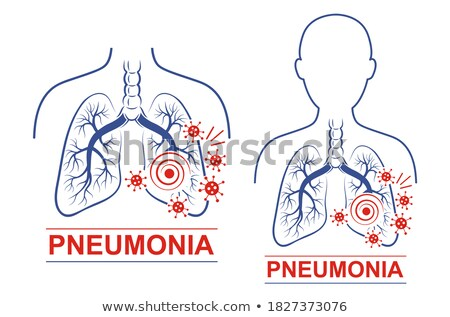 A Set of Bacterial Lung Infection Stock photo © bluering