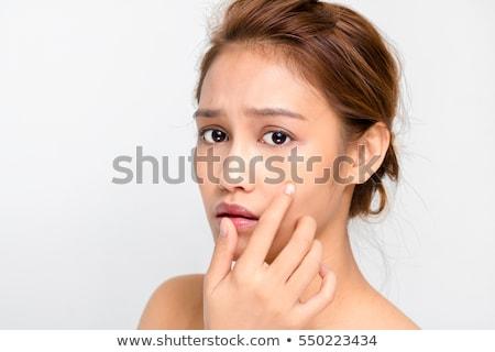 にきび · 少女 · 頬 · 女性 · 顔 · 悲しい - ストックフォト © lenm