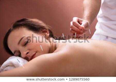 Mujer acupuntura tratamiento primer plano Foto stock © AndreyPopov
