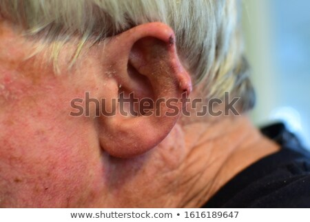 humaine · oreille · douleur · infection · symbole · barbelés - photo stock © lightsource