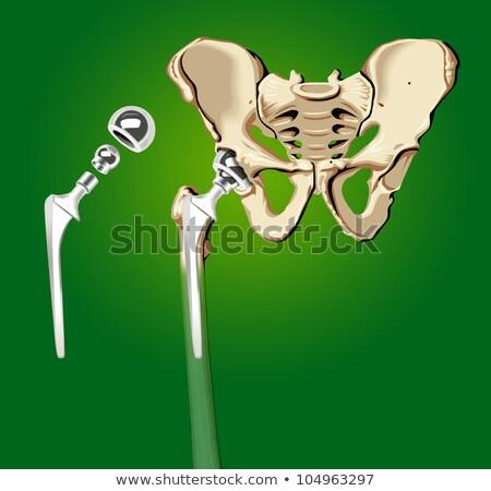 sebészi · közbelépés · ortopédia · protézis · csípő · kórház - stock fotó © alexonline