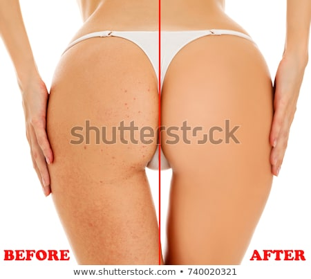 closeup shot of female buttocks before   after concept isolate stock photo © nobilior