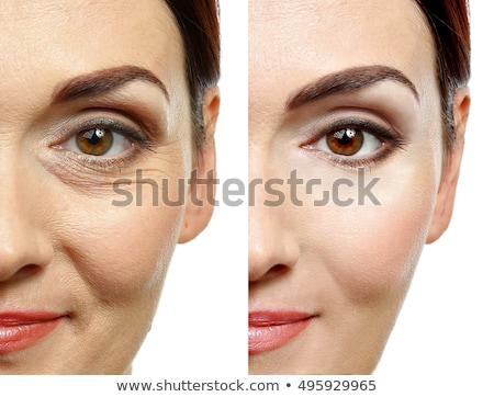 Foto stock: Womans Nose Before And After Plastic Surgery