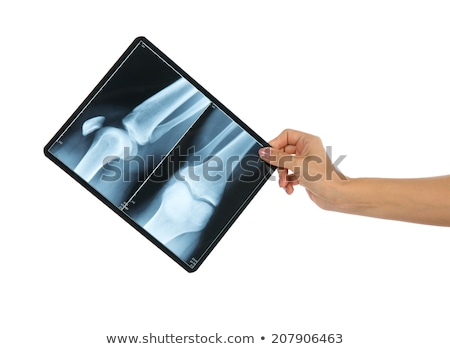 x-ray of a male bended elbow Stock photo © ldambies