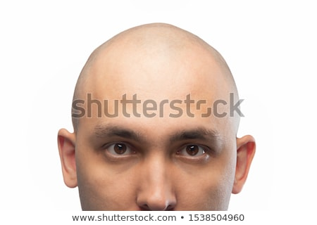 chauve · homme · tête · humaine · cheveux · perte - photo stock © ongap