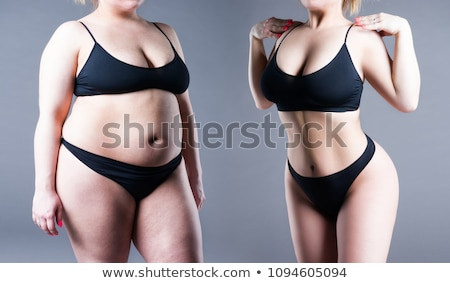 before and after breast surgery Stock photo © adrenalina