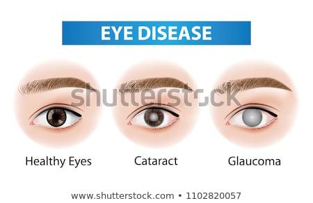 человека · глаза · изолированный · иллюстрация · поперечное · сечение · смысл - Сток-фото © tefi