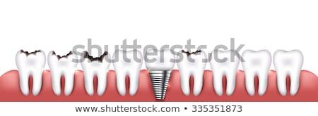 Ruim condição dente desenho bactérias Foto stock © Lighthunter
