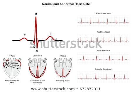 Fast Normal Slow Heartbeat Illustration Stock photo © alexaldo
