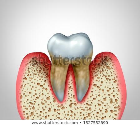 guma · choroba · porównanie · zdrowych · zębów · niezdrowy - zdjęcia stock © tashatuvango