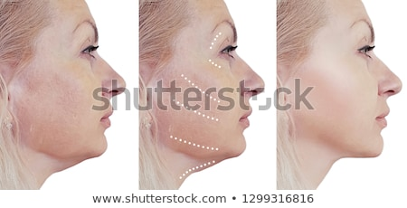 Face Lift Cosmetic Surgery And Liposuction Stock photo © AndreyPopov