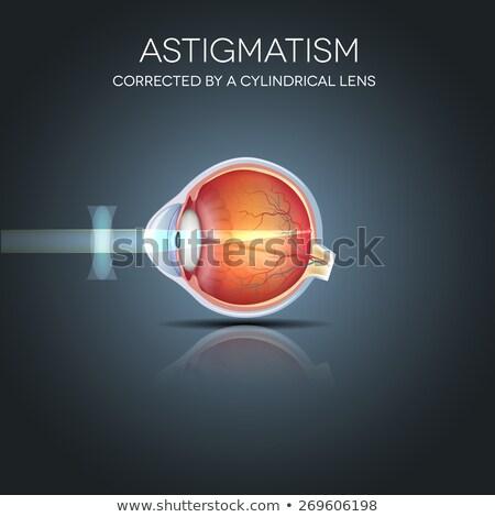 Astigmatism. Eyesight problem, blurred vission. Stock photo © Tefi
