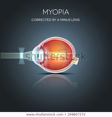 Myopia corrected by a minus lens. Myopia is being short sighted Stock photo © Tefi