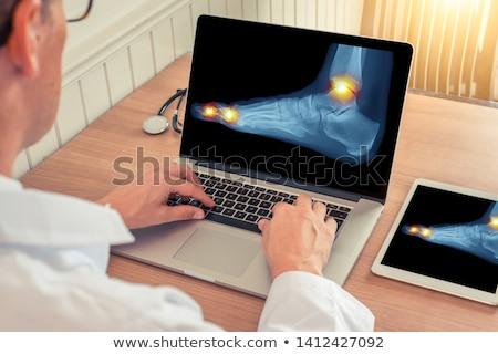 X-ray of a foot Stock photo © njnightsky