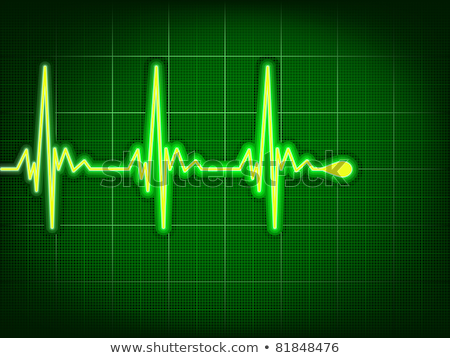 Stock photo: Heart cardiogram with shadow on green. EPS 8