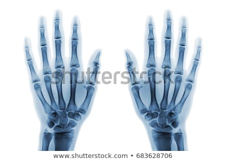 X Ray of two hands and forearm Stock photo © Klinker