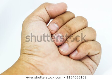 diagnosis   nail disease medical concept stock photo © tashatuvango