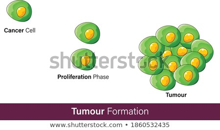 diagnosis   skin cancer medicine concept 3d illustration stock photo © tashatuvango