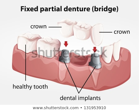Fixed partial denture bridge Stock photo © bluering
