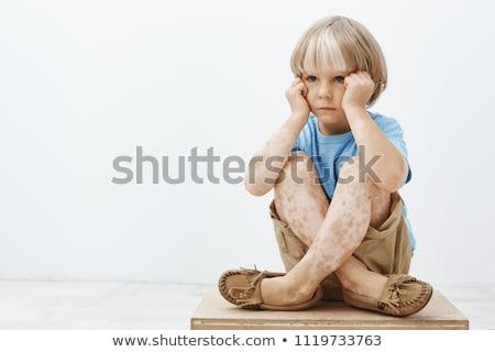 A Young Boy Having Vitiligo Stock photo © bluering